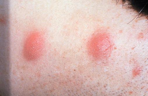 Supprimer acn kystique windows 10 - Traitement savon noir bicarbonate ...