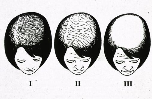 Выпадают волосы при лечении онкологии облучением
