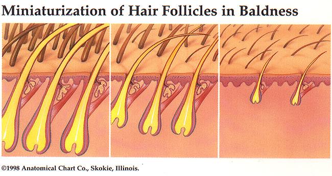 Propecia Vellus Hairs