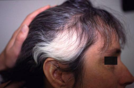 Nu Skin ageLOC Nutriol Scalp & Hair Shampoo (fejbőr- és hajápoló sampon) 200ml