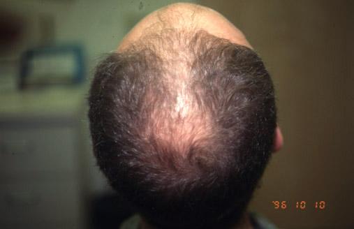 Восстановление натуральных волос