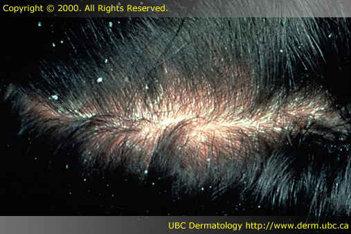 Seborrheic Dermatitis Scalp