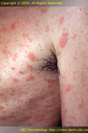 Recurrence of Pityriasis Rosea - Dermatology - MedHelp