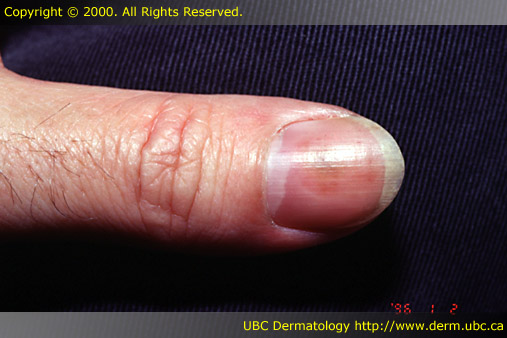 The nails are affected in a substantial number of patients with psoriasis 2