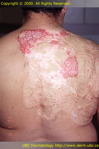 how long do psoriasis flare ups last)