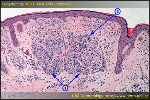 Spitz Nevus - American Osteopathic College of Dermatology ...