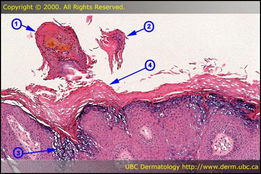 Search › dermatologic pathology | Quizlet