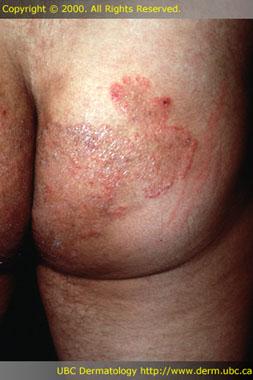 Types of ringworm: tinea corporis and tinea ... - MedicineNet