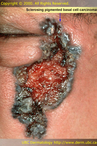 What is Basal Cell Carcinoma? - Skin Site