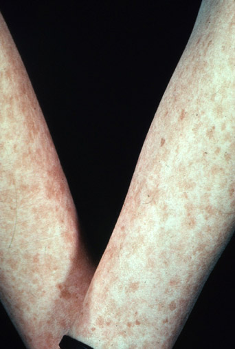 skin cancer freckles