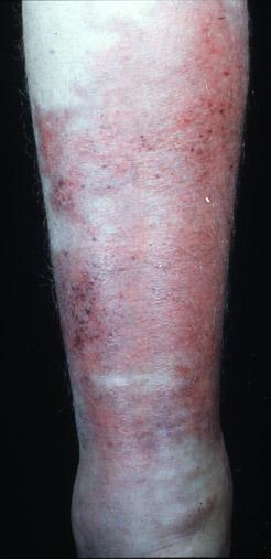 Streptococcus pyogenesStreptococcus On Skin