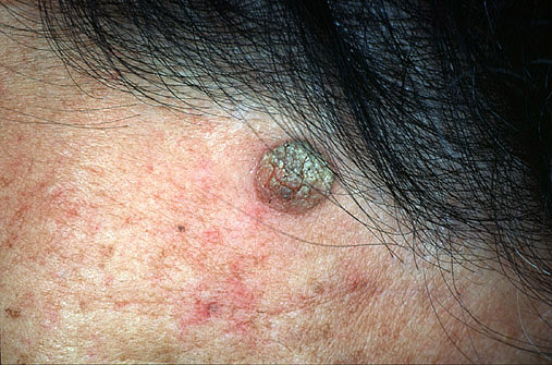 Cryotherapy of Seborrheic keratosis